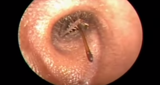 Can Bed Bugs Get In Your Ear 28 Images Ear Canal