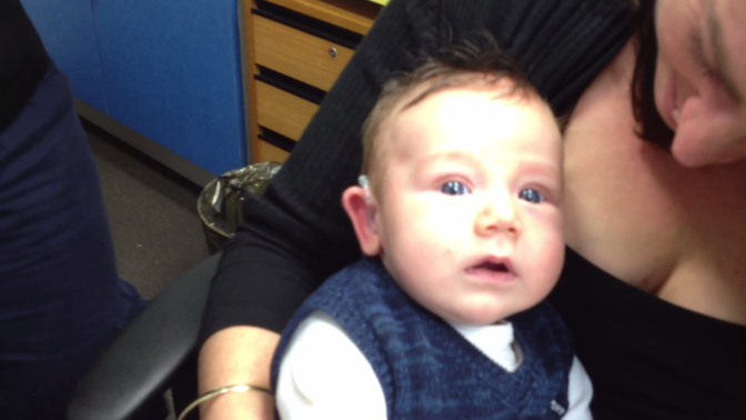 7 Week Old Baby Hears for the First Time and Smiles VIDEO