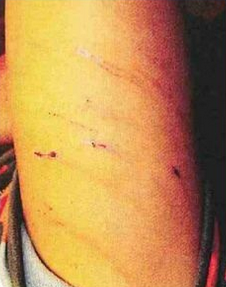 Pictures of Marks on Adrian Peterson's Son
