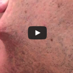 Man shaves his beard off but he got terrified when he found out…
